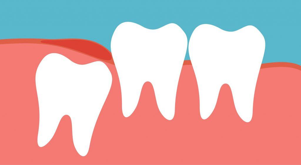 My wisdom tooth hurts, should I take it away?