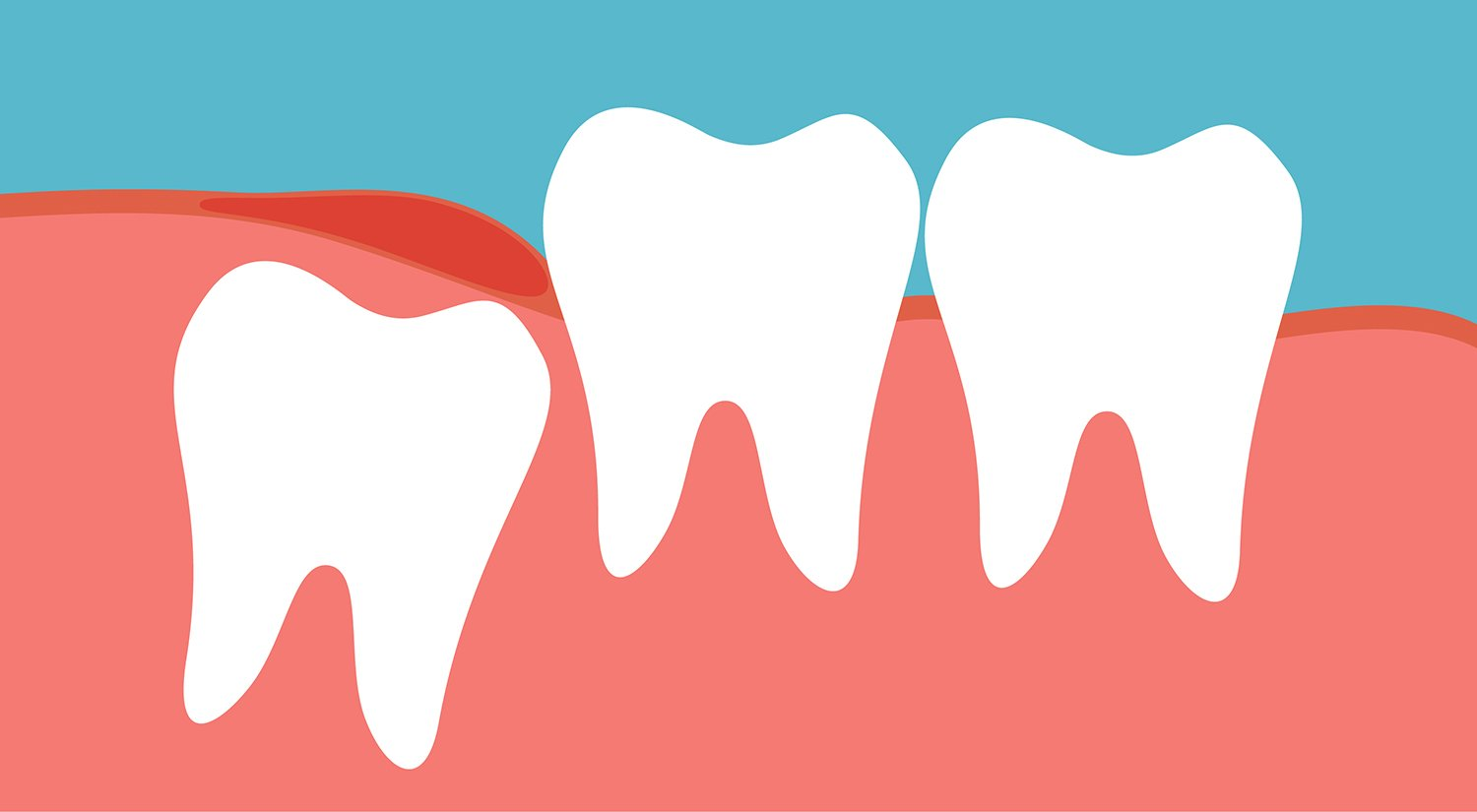 My wisdom tooth hurts, should I take it away?