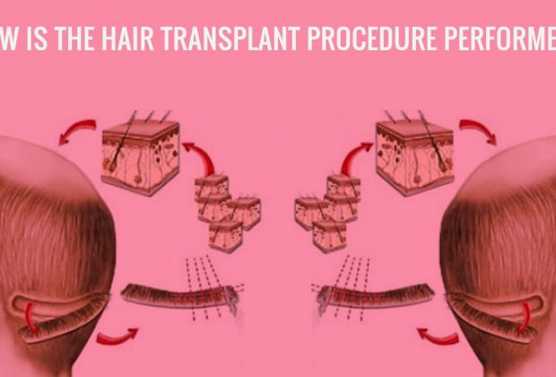 What are the pros and cons of the FUE Hair Transplant
